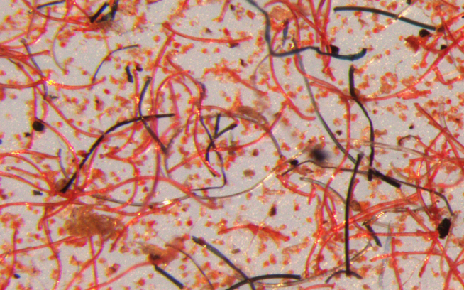Microscope image shows a closer view of microfibers tested during the study. These tiny fibers that shed from garments over their lifetime are no larger than five millimeters. Photo: Mathew Watkins